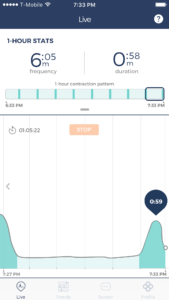 Bloomlife smart pregnancy tracking monitoring contractions for labor in third trimester of pregnancy